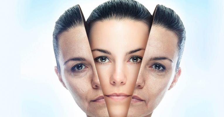 Resurfacing Fracionado para o Tratamento de Sequelas de Acne