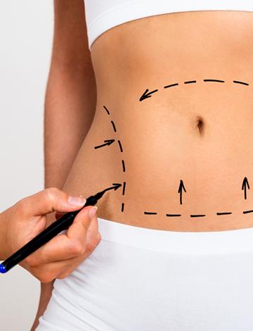Protocolos de cicatrização para abdominoplastia e mastoplastia  – 18/07/2019