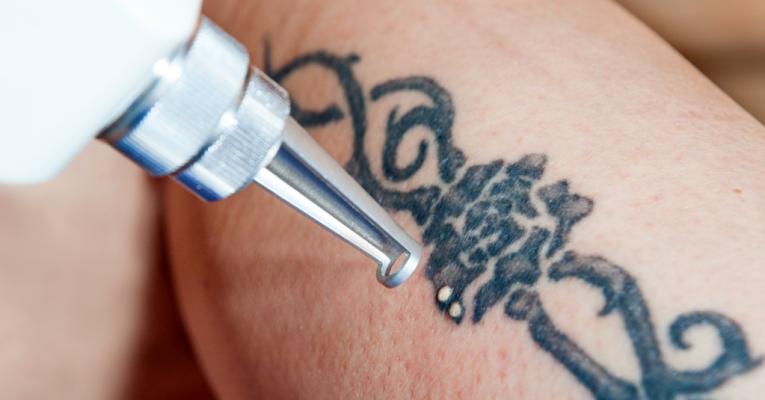 ACROMA – QS ® Tecnologia a laser para a remoção de tatuagem