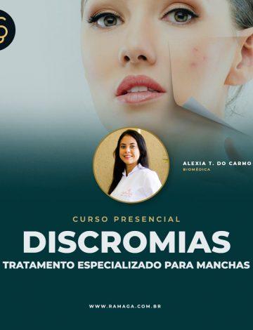 Curso de Discromias – Tratamento Especializado para Manchas – 18/11/2021