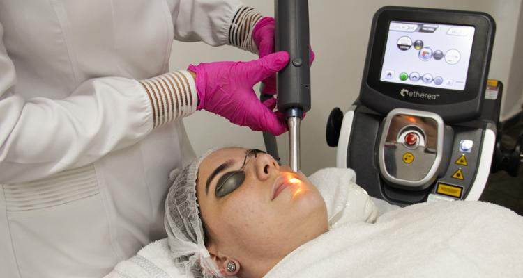 InLift® para laser lifting através de tratamento intraoral